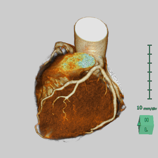 3D_Heart_CT_Check